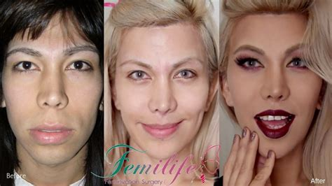 real forced feminization before and after facial feminization surgery before and after procedures