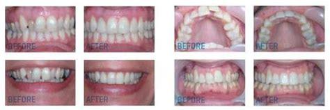 home teeth straightening service  save