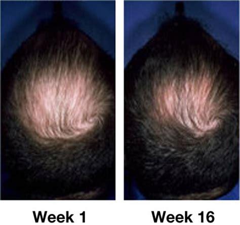 real minoxidel results hair restoration click bank newhairstylesformen2014 com