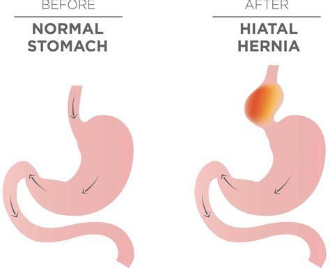 alimentazione per ernia iatale ernia iatale cause sintomi alimentazione e dieta