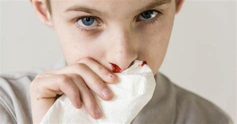 sangue dal sedere krwawienia z nosa przyczyny jak zatamowa艸 krwotok z