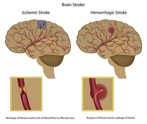 stroke treatment treat brain strokes with stem cells neurorehabilitation for hemiplegia