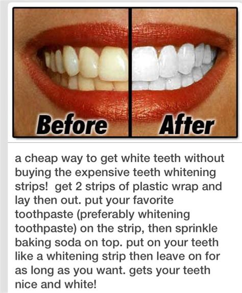 5 Tips For Whiter Teeth by 297 Likes