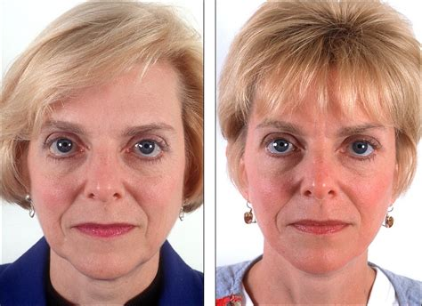 hairstyles for an aging face with jowls hairstyles for an aging face with jowls best haircut aging