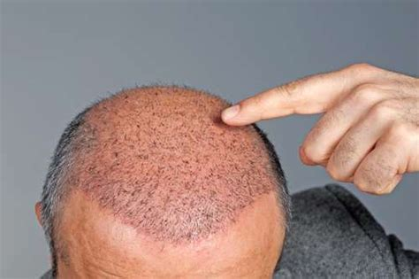 hair transplant cost in tianjin china after hair transplant surgery nicehair