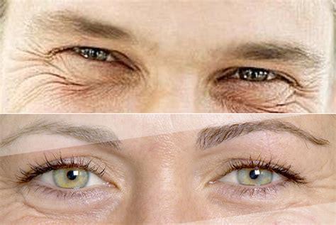 donna e qual 232 la differenza tra rughe occhi donna e uomo notizie it