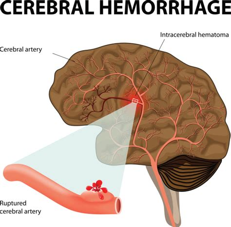 rottura vasi sanguigni aneurisma cerebrale cos 232 e quanto 232 pericoloso