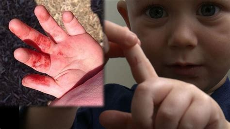 Cut Blade Razor parents of toddler cut by razor blades in park say culprit