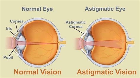 do they make colored contacts for astigmatism mr j villa emilyg astigmatism