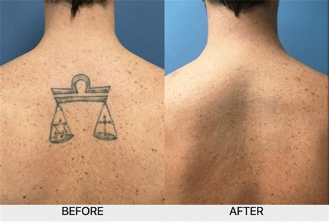 tattoo removal chicago il picosure laser removal chicago il chicago breast