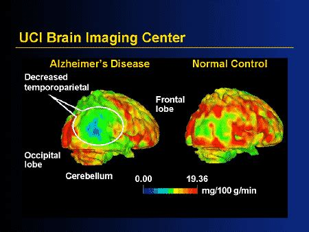 treatment  alzheimers disease  disease