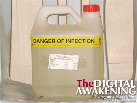 creatinine 24 hour urine 24 hour urine creatinine the digital awakening