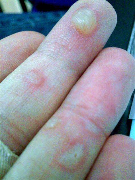Sarung Tangan Kulit Variasi Tiga Jahitan Tengah Dan Ban Knop cara mengobati kulit tangan yang melepuh informasi