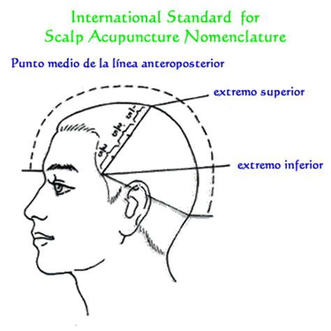 dolor de cuero cabelludo acupuntura en el cuero cabelludo seg 250 n el m 233 todo del dr