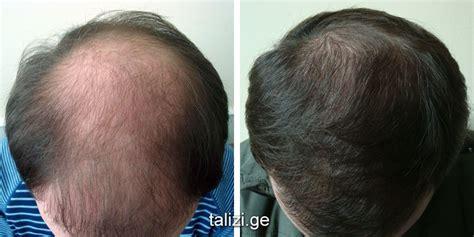 grow more pubic hair grow more pubic hair newhairstylesformen2014 com