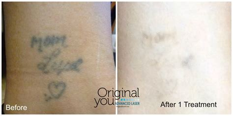 advanced laser tattoo removal advanced laser removal laser removal in