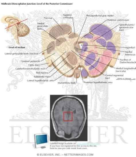 brain stem cross section midbrain diencephalon junction level of the posterior