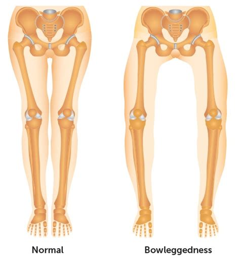 bow legged how bow legs surgery can help your diagnosed genu varum