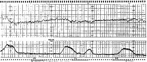 pattern of heart contraction intrapartum fetal monitoring glowm