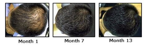 rogaine success stories regaine rogaine how effective is regaine for hair loss