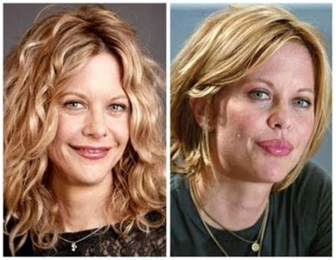 meg ryan plastic surgery gone bad or disaster and turning