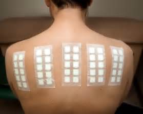 patch test patch testing tim clayton dermatology