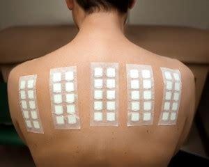 pach test patch testing tim clayton dermatology