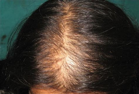 female pattern hair loss pictures ways to deal with female pattern hair loss medicines and