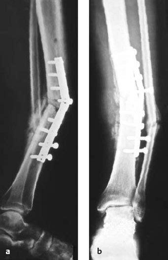 Surgical Treatment of Osteomyelitis | Musculoskeletal Key