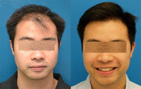fut hong kong hair transplant fut hong kong hair transplant before and after hair