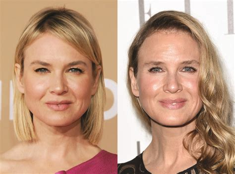 Renee Zellweger Has A Brand New by Dr Vik Talks Botox And How To Choose The