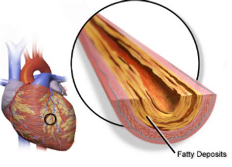 Does Niacin Speed Up Detox by Does Flush Free Niacin Work As Well To Lower Cholesterol