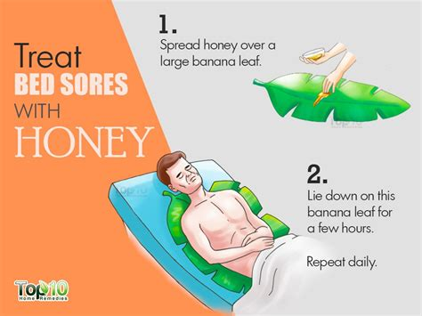 how to prevent bed sores home remedies for bed sores top 10 home remedies
