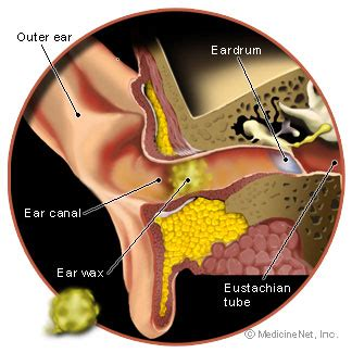 ear wax diagram earwax blockage removal home remedies for buildup