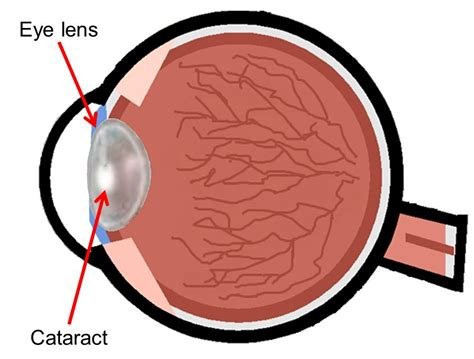 eye lens radiation and cataract staff protection