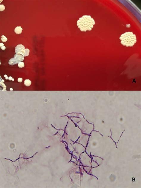 nocardia thailandica pulmonary nocardiosis   post solid