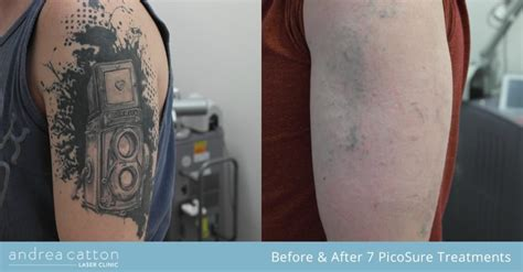 tattoo removal research picosure removal study 3 alex