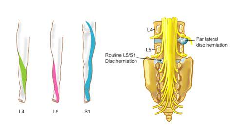 sciatica diagram sciatic nerves view court housing co op