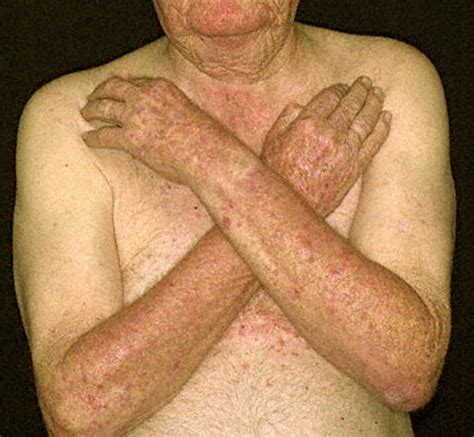 Sun Poisoning From Tanning Bed by Skin Rash From Tanning Bed Breeds Picture
