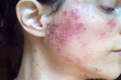 Can Infections Come From Detoxing by Staph Infection On The And Ps