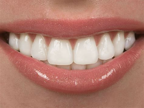 what are veneers cost of porcelain veneers abroad medigo