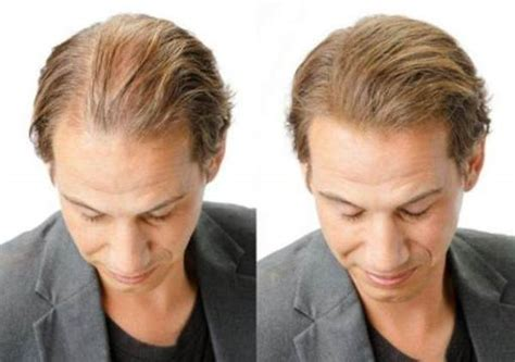 before and after thinning mens haircut how to treat thinning hair