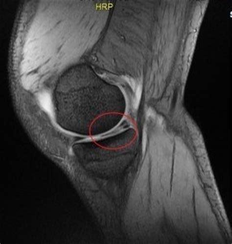 dolore interno spalla destra menisco lesionato rmn
