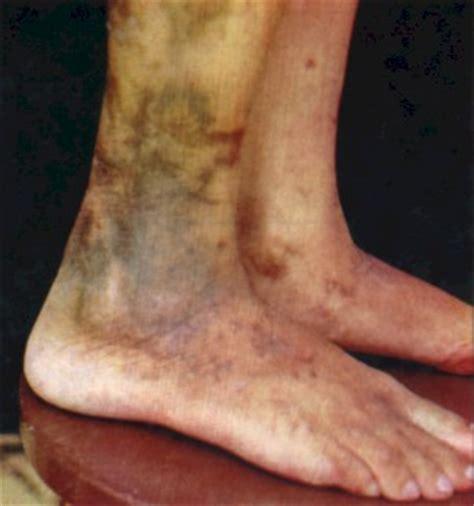 imagenes de manchas rojas en los pies pitiriasis alba fotos de las manchas y tratamientos