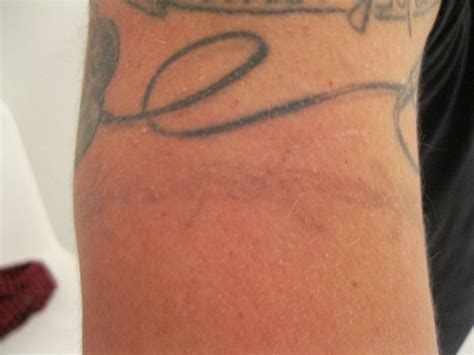pain of laser tattoo removal removal is expensive time consuming and