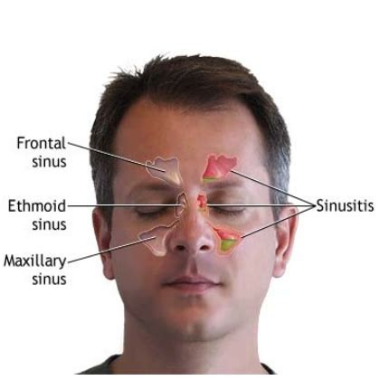 Sinus Headache Home Remedies by Top 18 Cures For Sinusitis How To Cure Sinusitis