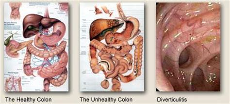 How To Help Impacted Stool by Bowel Colon Cleanser Pills Flush Detox Ibs Parasites