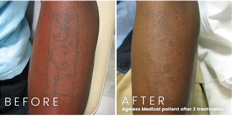 laser tattoo removal fort lauderdale laser removal ageless fort lauderdale