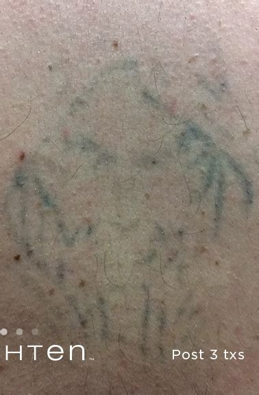 laser tattoo removal nh removal 4 windham nh renew medispa