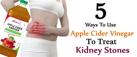 5 ways to use apple cider vinegar to treat kidney stones